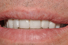 Before 11b - Smile Gallery O2Dental dentist downtown vancouver bc