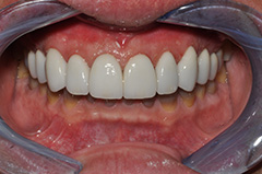 Before 13b Smile Gallery O2Dental dentist downtown vancouver bc