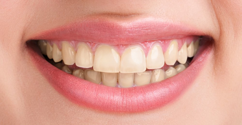 healthy teeth smilie over O2Dental Dentist Vancouver