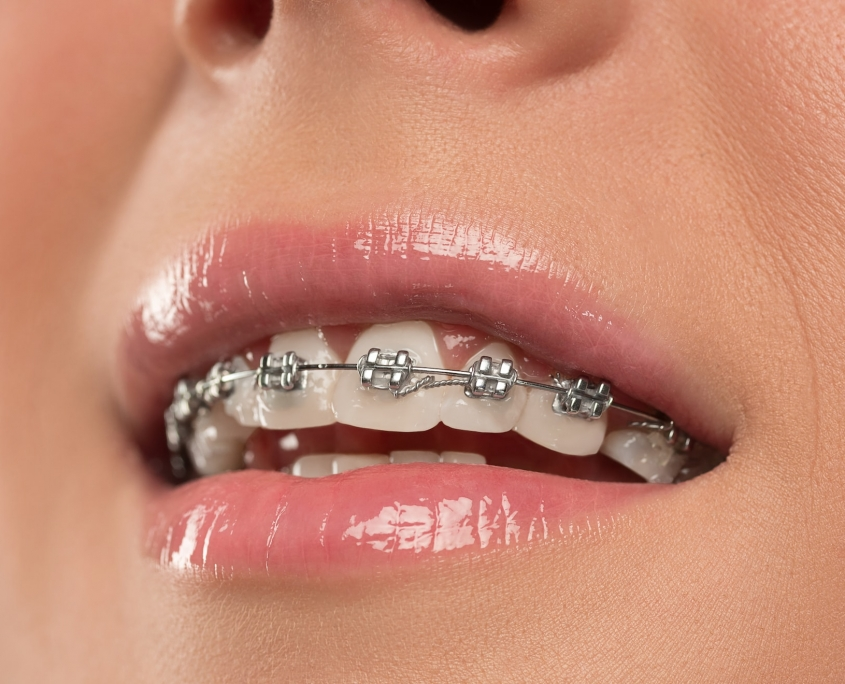 Orthodontics 02Dental Dentist Downtown Vancouver