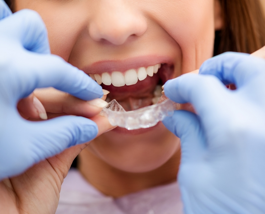 invisible braces orthodontist checking kids-dental-braces-downtown vancouver dentist